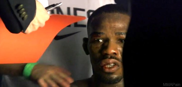 jon jones ufc 165 post fight face