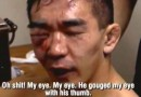 Yuki Nakai eye after Gerard Gordeau fight