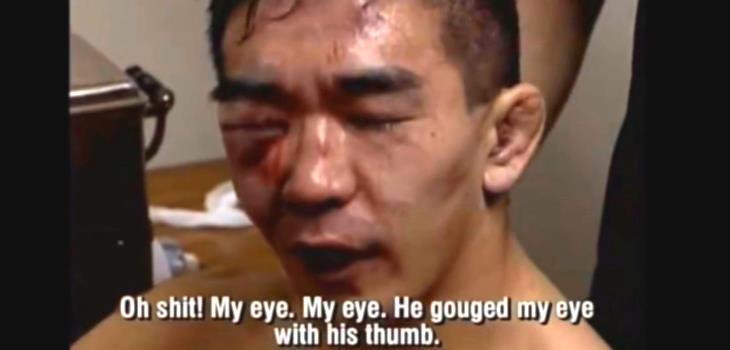 Yuki Nakai eye after Gerard Gordeau fight