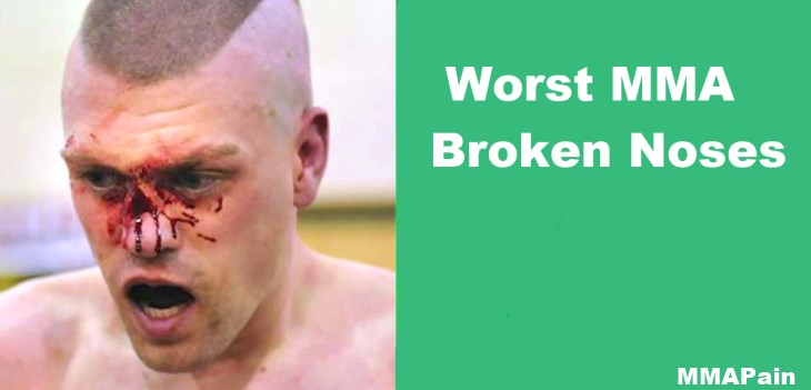 About Mma fighter broken nose can not