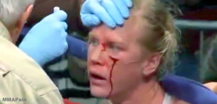 Anne Sophie Mathis vs Holly Holm  fight