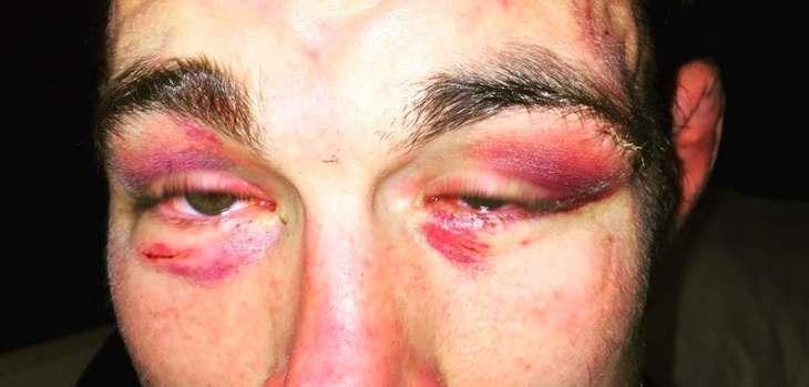 Jake Shields eyes